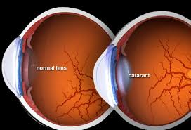 Normal vs Cataract Eye